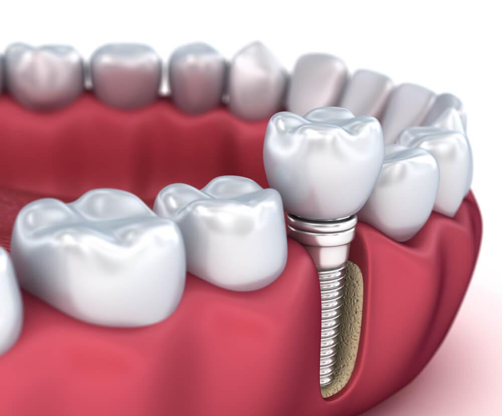 Implant dentaire : un implant cohérent ?